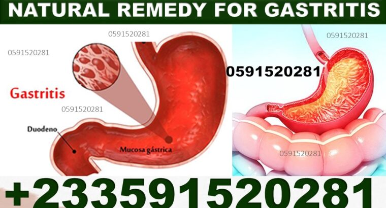 NATURAL REMEDY FOR GASTRITIS IN GHANA