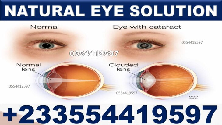HOW TO GET RID OF VISION EYE PROBLEM